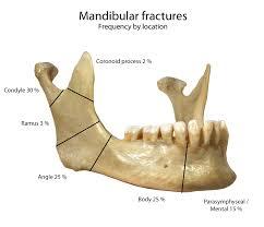 下顎の骨折。箇所別の骨折割合